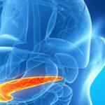 راهبردهای رژیمی در سرطان پانکراس