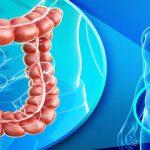 تغییر رژیم غذایی و خطر ابتلا به سرطان روده ی بزرگ