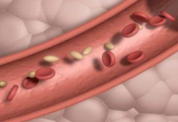 آیا استرس کلسترول خون را افزایش می دهد؟