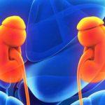 ارتباط کاهش مصرف سدیم با فشارخون در بیماران کلیوی