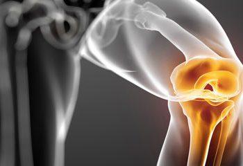 دویدن باعث کاهش التهاب در مفاصل زانو می شود.