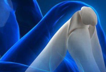 پوکی استخوان با شما چه می کند؟