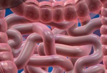 علائم و علل سندروم روده تحریک پذیر