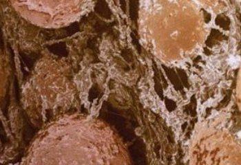 سلول های چربی تنها ذخایرغیر فعال انرژی نیستند
