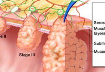پیشگیری از سرطان روده با تغییر در شیوه زندگی