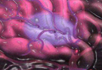 جدید ترین توصیهها  برای پیشگیری از سکته مغزی