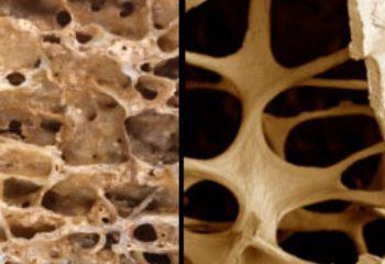 کلسیم گیاهی و کاهش ریسک ابتلا به پوکی استخوان