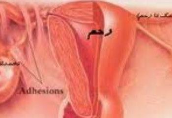 سندرم تخمدان پلی کیستیک و رژیم غذایی