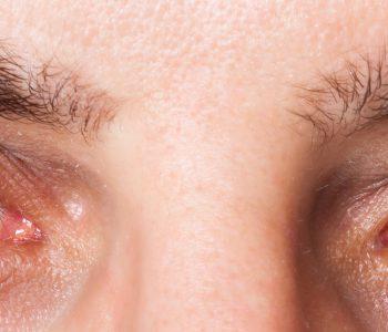 درمان بیماری دژنراتیو چشم با مکمل حاوی آنتی اکسیدانها