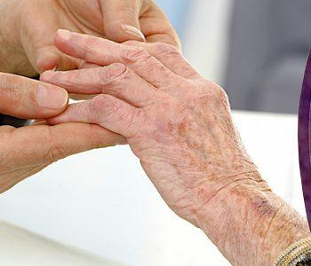 پروبیوتیکها و کاهش التهاب کلیه در مبتلایان به لوپوس