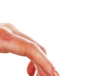 ویتامینD سبب بهبود زخم در بیماران دچار سوختگی میشود.