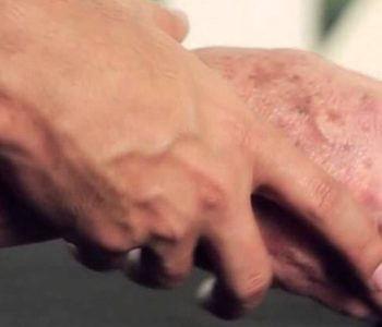 خطرات کاهش وزن در بیماران مبتلا به پارکینسون