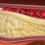 کاهش چربی خون با رژیم