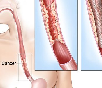 چه عواملی خطر ابتلا به سرطان مری را افزایش میدهند؟