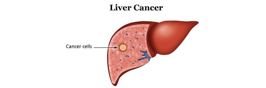 چاقی، یکی از علل مهم ابتلا به سرطان کبد