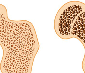 رژیم غذایی مدیترانهای، مفید برای مبتلایان به پوکی استخوان