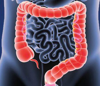 چاقی خطر ابتلا به سرطان روده بزرگ را ۲ برابر افزایش میدهد
