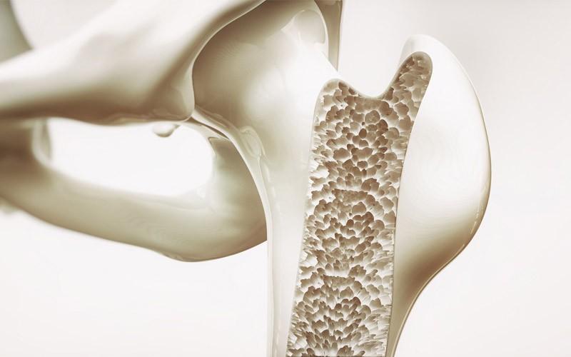 پوکی استخوان و ارتباط آن با سلامت پاها