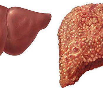 درمان کبد چرب با چند کیلو کاهش وزن