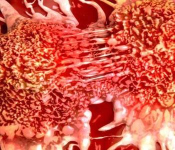 پیشگیری از سرطان به کمک رژیم غذایی سالم