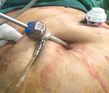 جراحی چاقی و  اهمیت رژیم غذایی پس از آن