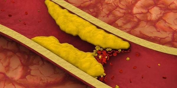 تری گلیسیرید چیست و چگونه می توان آن را کاهش داد؟