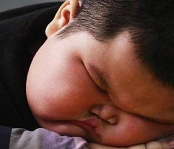 عوارض چاقی در کودکان و نوجوانان