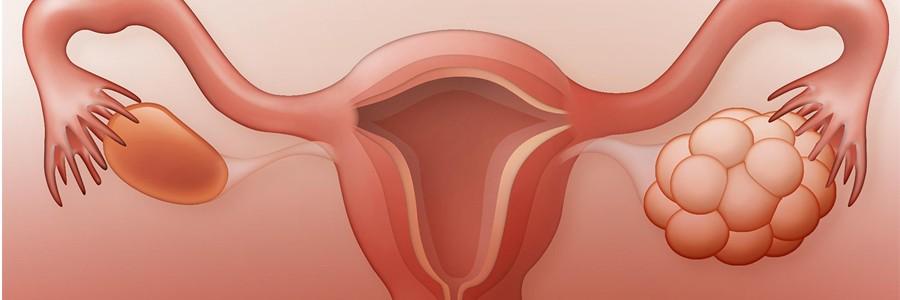 سندرم تخمدان پلی کیستیک و ارتباط آن با دیابت نوع 2