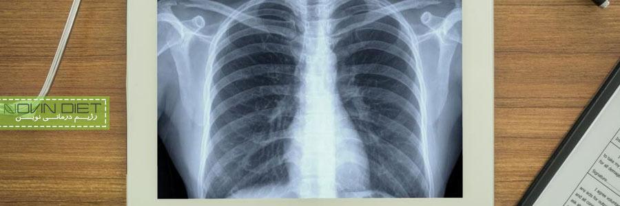 با کدام غذاها به جنگ سرطان ریه برویم؟
