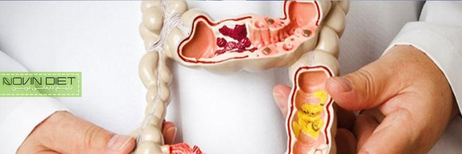 سلامت روده با مصرف غذاهای گیاهی تضمین می شود