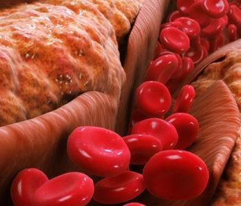 کاهش کلسترول و قند خون با رژیم